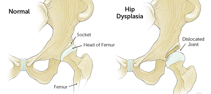 the different between a normal hip and a disclocted hip for hip dysplasia